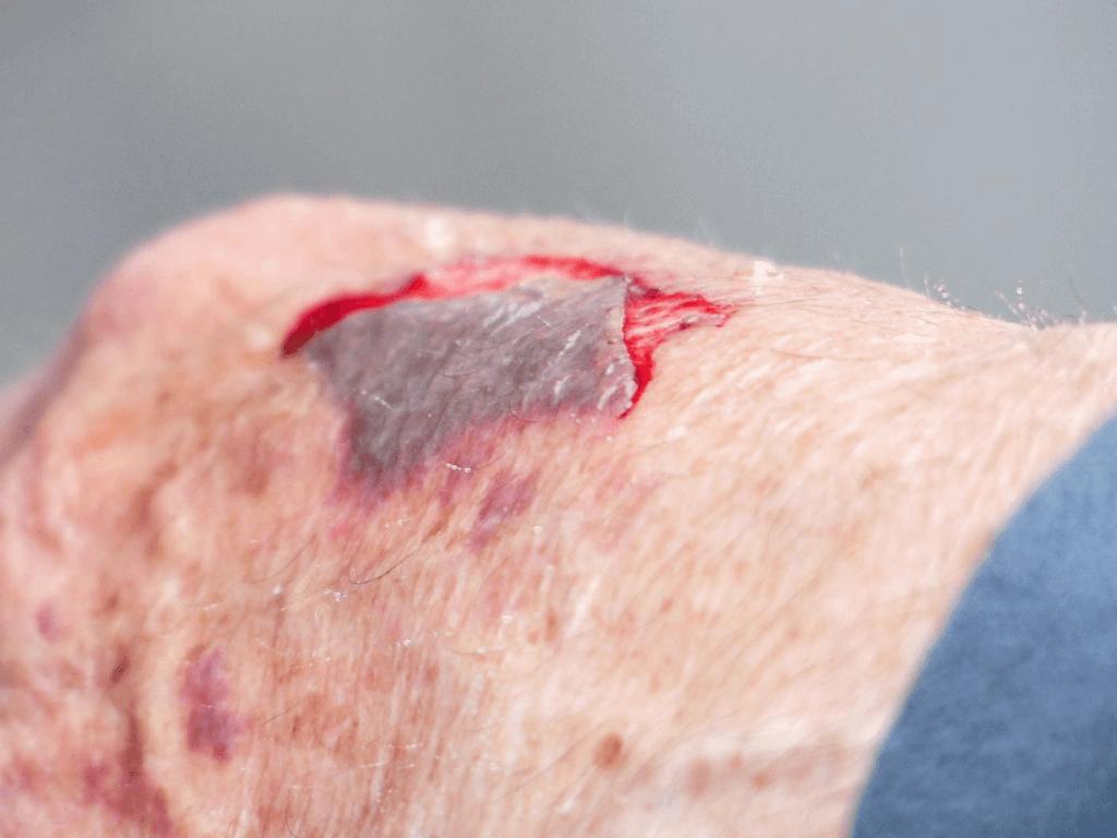 Skin Tear on hand